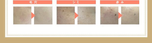 クリーミィタップファンデーション使用 毛穴、シミ、赤み