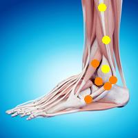足首の痛み(前距腓靭帯損傷,後距腓靭帯損傷 ,前脛腓靭帯損傷,後脛腓靭帯損傷)