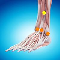 足首の痛み(変形性足関節症,前脛骨筋腱炎,前脛腓靭帯損傷,関節リウマチ)