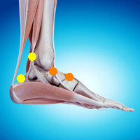 足首の痛み(後脛骨筋腱炎,足首の手術後の保護)