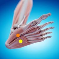 足首の痛み(長足底靭帯損傷,腓骨下端剥離骨折)