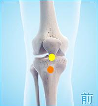 膝の前側の痛み(オスグッドシュラッター病,膝蓋靭帯炎)