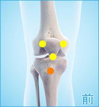 オスグッド病(膝の前側)