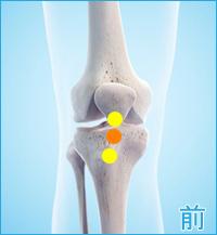 膝の痛み(ジャンパーズニー全面)