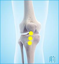 膝の前側の痛み(ジャンパーズニー)