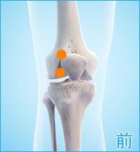 膝蓋骨脱臼全面(膝の前側)