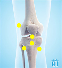 膝の前側痛みみ(ランナー膝)