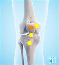 膝の前側の痛み(棚障害)