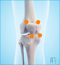 前十字靭帯損傷の後遺症の痛み(膝の前側)