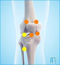 前十字靭帯損傷の合併症痛み(膝の前側)