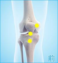 後十字靭帯損傷の合併症(膝の前側)