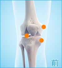 膝の痛み(膝の前側)