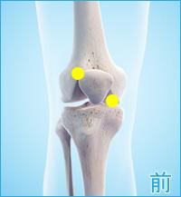 軟骨損傷(膝の前側)