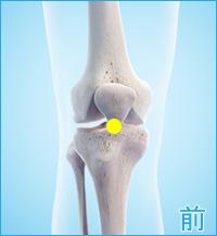 半月板または側副靭帯の症状の破裂