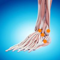 足首の痛み(腓骨骨折後遺症,前距腓靭帯損傷,外側距腓骨靭帯損傷,骨間靭帯損傷)