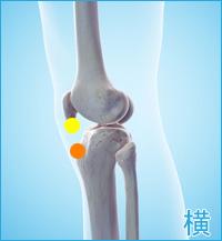 膝の横の痛み(オスグッドシュラッター病,膝蓋靭帯炎)