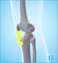 膝の横の痛み(ジャンパーズニー)