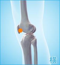 膝蓋骨側面(膝の横)