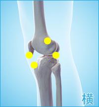 膝の外側の痛み(ランナー膝)