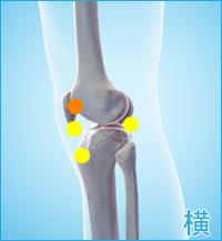 膝の外側の痛み(棚障害)