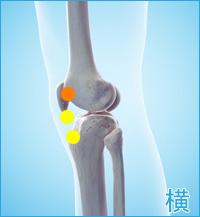 膝の横の痛み(棚障害)