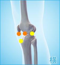 膝の横の痛み(前十字靭帯,後十字靭帯)