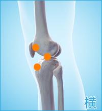 前十字靭帯損傷の合併症痛み(膝の横)