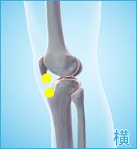 後十字靭帯損傷の合併症(膝の横)