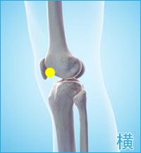 軟骨損傷(膝の横)