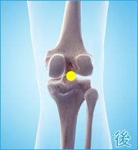 膝の後ろの痛み(棚障害)
