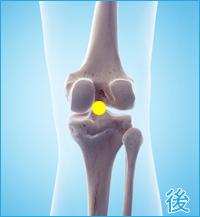 膝の後ろ側の痛み(棚障害)