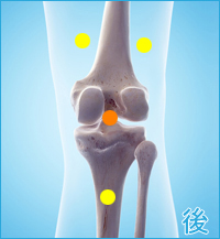 膝の後ろ側の痛み(膝をかばった痛み)