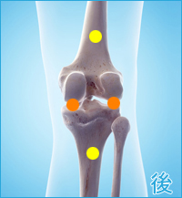 前十字靭帯損傷の後遺症の痛み(膝の後ろ側)