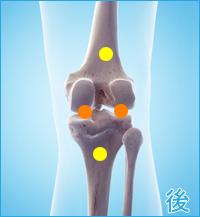前十字靭帯損傷の合併症痛み(膝の後ろ側)