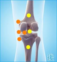 膝の後ろの痛み(内側側副靭帯損傷をかばった膝の痛み)
