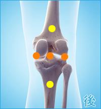膝の後ろ側の痛み(後十字靭帯損傷の合併症の痛み)