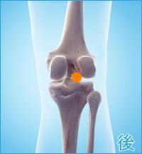 後十字靭帯損傷の合併症(膝の後ろ側)