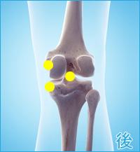 軟骨損傷(膝の後ろ側)