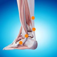 足首の痛み(腓骨筋腱損傷,アキレス腱炎)
