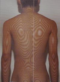 バッティングが原因の腰痛(治療前)