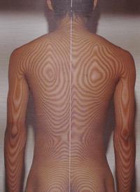 バッティングが原因の腰痛(治療後)