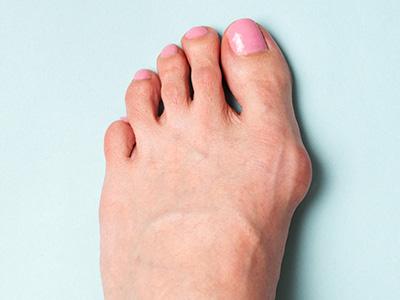外反母趾の鍼治療