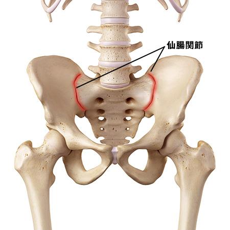 仙腸関節炎を治す!>骨盤ベルト