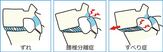 背骨の疲労骨折