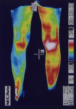 右膝の痛み(後側)