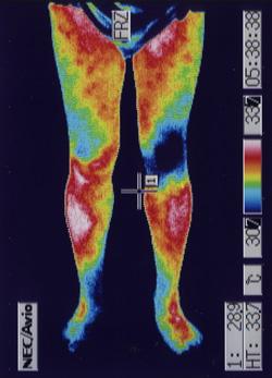 右膝の痛み(前側)