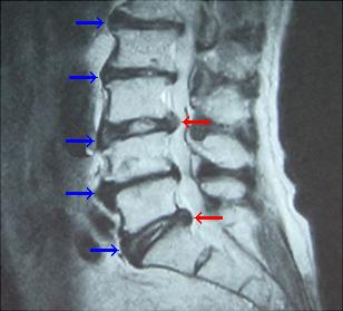 椎間板や背骨の変形