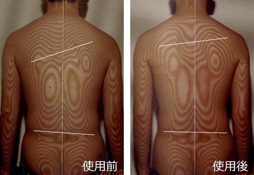 <腰痛ベルトで治す>ぎっくり腰後遺症の治療(治療前と治療後)