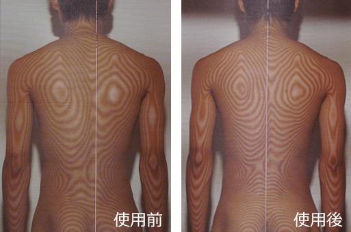 <腰痛ベルトで治す>変形性腰椎症の治療(治療前と治療後)