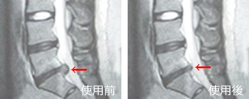 <腰痛ベルトで治す>椎間板ヘルニア後遺症の治療(治療前と治療後)